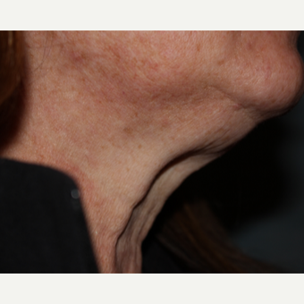 55-64 year old female 1 treatment with Kybella before 3185592