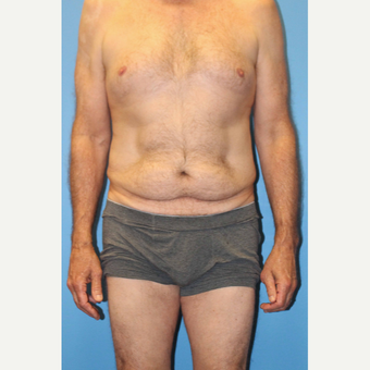 55-64 year old man treated with Body Lift before 3333843