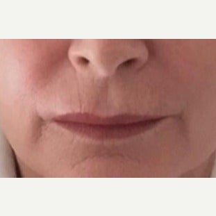 55-64 year old woman treated with Lip Augmentation with Restylane Silk