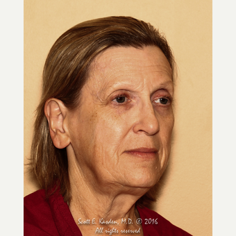 65-74 year old woman treated with SMAS Facelift before 3612161