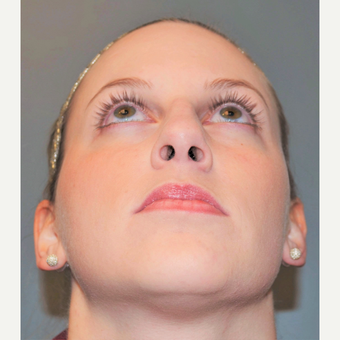 25-34 year old woman treated with Rhinoplasty before 3712289
