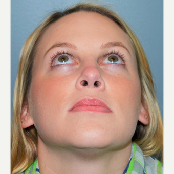 25-34 year old woman treated with Rhinoplasty after 3712289