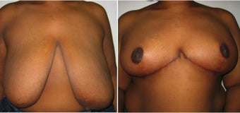 45 year old woman who underwent breast lift before 1081979