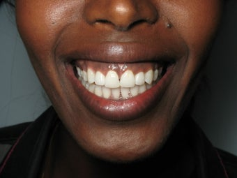 Invisalign for Severe Spaces after 1031829