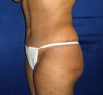 35-44 year old woman treated with Tummy Tuck after 3766127