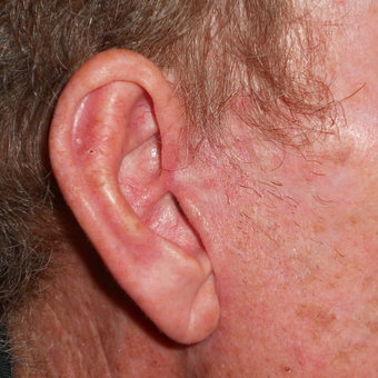 45-54 year old man treated with Mohs Surgery for a basal cell carcinoma on the ear after 3183957