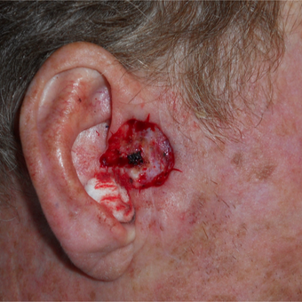 45-54 year old man treated with Mohs Surgery for a basal cell carcinoma on the ear before 3183957