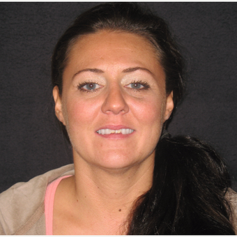 35-44 year old woman treated with Porcelain Veneers 1954839