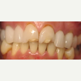 35-44 year old woman treated with Porcelain Veneers before 1954839