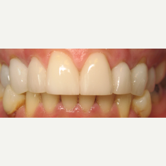 35-44 year old woman treated with Porcelain Veneers after 1954839