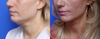 45-54 year old woman treated with Chin Liposuction before 1688819