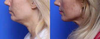 45-54 year old woman treated with Chin Liposuction after 1688819