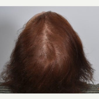 Woman treated with PRP for Hair Loss after 2197394