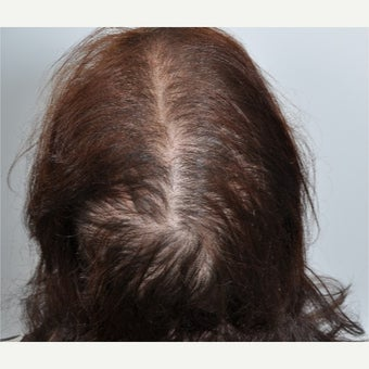 Woman treated with PRP for Hair Loss before 2197394