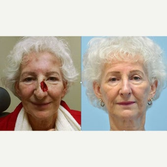 65-74 year old woman treated with Facial Reconstructive Surgery before 1966229