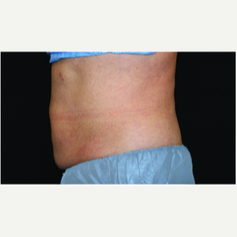 55-64 year old woman treated with CoolSculpting