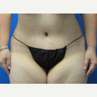 39 year old woman Tummy Tuck after 3704389