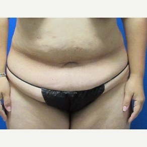 39 year old woman Tummy Tuck before 3704389