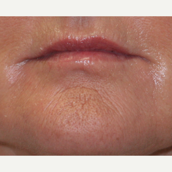 55-64 year old woman treated with Lip Augmentation after 3758776