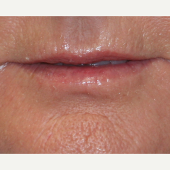 55-64 year old woman treated with Lip Augmentation before 3758776