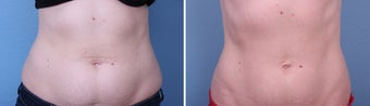 CoolSculpting before 1105968