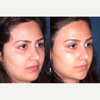 25-34 year old woman treated with Revision Rhinoplasty after 3521284