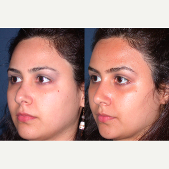 25-34 year old woman treated with Revision Rhinoplasty before 3521284