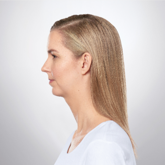 25-34 year old woman treated with Kybella after 2955785