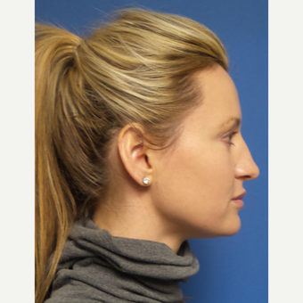 33 year old woman treated with Rhinoplasty and septoplasty before 3326533