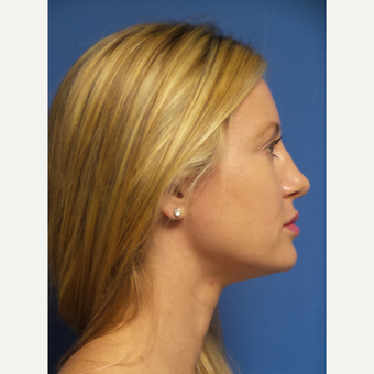 33 year old woman treated with Rhinoplasty and septoplasty after 3326533