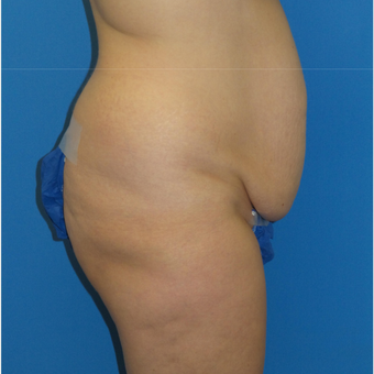43 year old woman treated with Tummy Tuck before 3341189