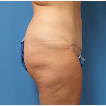 43 year old woman treated with Tummy Tuck after 3341189
