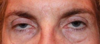 45-54 year old woman treated with Ptosis Surgery