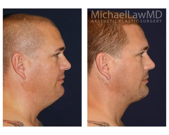 Chin Liposuction before 1256096