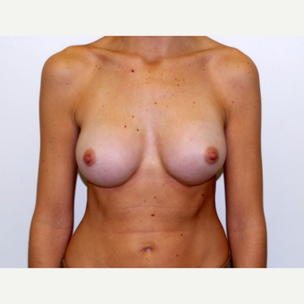 25-34 year old woman treated with Breast Augmentation after 3378321