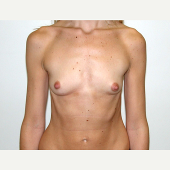 25-34 year old woman treated with Breast Augmentation before 3378321