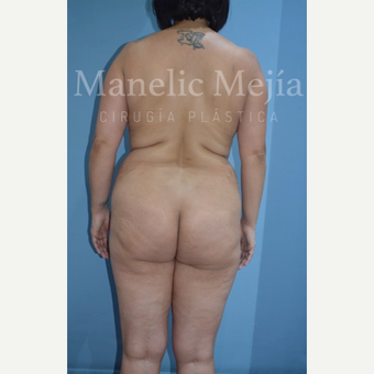 45-54 year old woman treated with Brazilian Butt Lift before 3648100