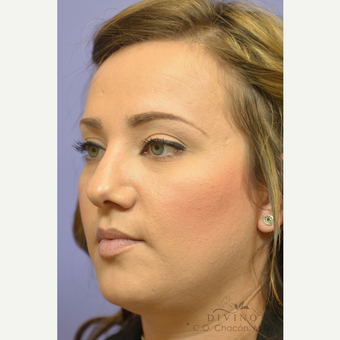 25-34 year old woman treated with Rhinoplasty before 3391932