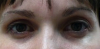 Botox Used To Treat Eye Wrinkles and Change Eye Shape before 1367249