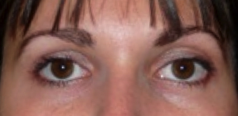 Botox Used To Treat Eye Wrinkles and Change Eye Shape after 1367249
