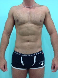 Abdominal Etching after 1069871