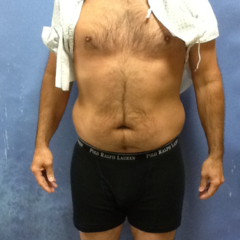 35-44 year old man treated with Smart Lipo before 3530160