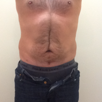 35-44 year old man treated with Smart Lipo after 3530160