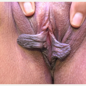 25-34 year old woman treated with Labiaplasty before 3725356