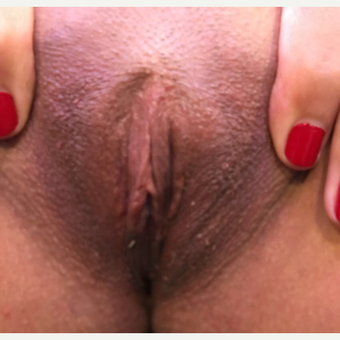 25-34 year old woman treated with Labiaplasty after 3725356