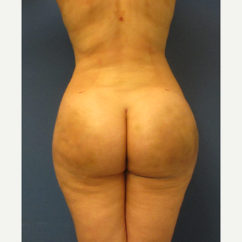 35-44 year old woman treated with Brazilian Butt Lift after 3726056