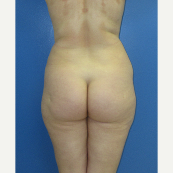 35-44 year old woman treated with Brazilian Butt Lift before 3726056