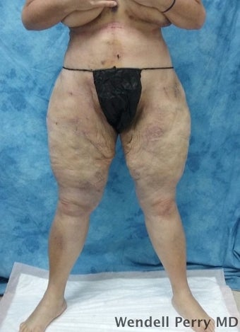 45-54 year old woman treated with Tummy Tuck after 3350926
