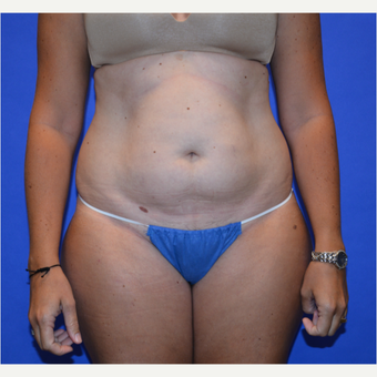 35-44 year old woman treated with Tummy Tuck before 3580083