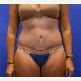 35-44 year old woman treated with Tummy Tuck after 3580083